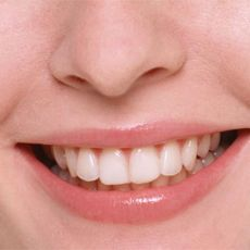 Как можно быстро выпрямить зубы в домашних условиях