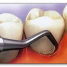 Зубной камень – лечение