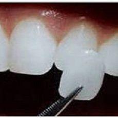 Виниры на передние зубы: стоимость