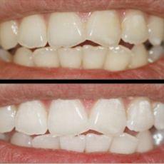 Процедура щадящего безвредного отбеливания зубов