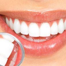 Покрытие зубов лаком - цена