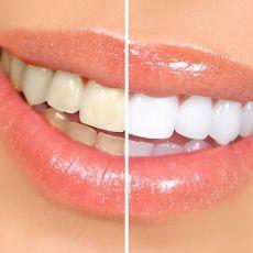 Удаление налета с зубов