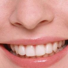 Как удалить, убрать темный налет на зубах