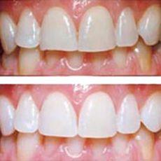 Чистка зубов цена