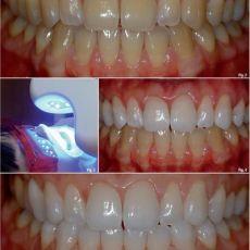 Офисное отбеливание зубов, цена