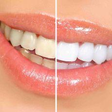 Реставрационное отбеливание зубов, цена