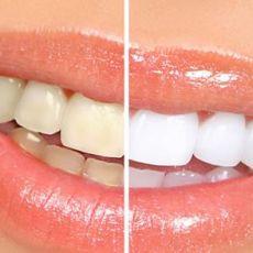 Отбеливание зубов Beyond цены