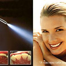 Лазерная чистка зубов цена
