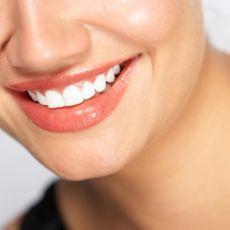 Кислородное отбеливание зубов - цена
