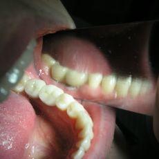 Протезирование зубов, цены, стоимость