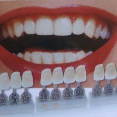 Установка зубных протезов цена стоимость