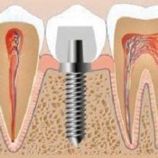 Больно ли вставлять зубы?