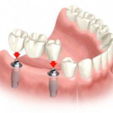 Как ставят имплантанты зубов — этапы имплантации