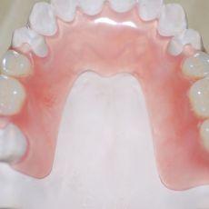 Силиконовые зубные протезы - цены