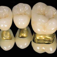 Виды коронок для зубов