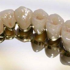 Протезирование зубов из металлокерамики, цены