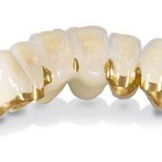 Металлокерамические зубы (цены  )