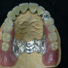 Методы, виды, способы протезирования зубов