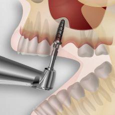 Установка зубных имплантов: цены, стоимость