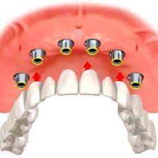 Несъемные зубные протезы. Цена