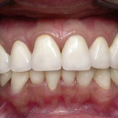 Съемное несъемное протезирование зубов