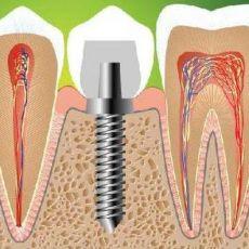 Протезирование без обточки соседних зубов