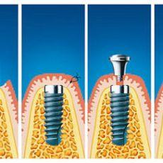Экспресс имплантация передних зубов