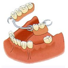 Бюгельные зубные протезы, цена, стоимость